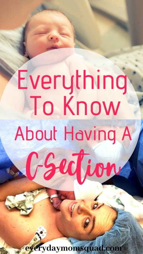 what to know about having a c-section